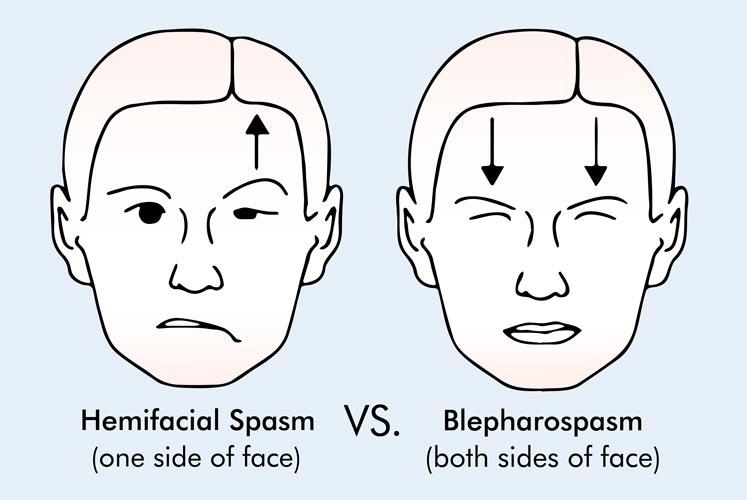 Hemi-vs.-blepharo-web